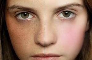 Những sai lầm nghiêm trọng khi điều trị nám da mặt