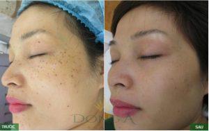Hình ảnh trước sau điều trị nám da