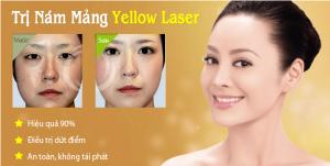 Yellow Laser: Trị sạch nám mảng – Liệu trình chỉ 21 ngày