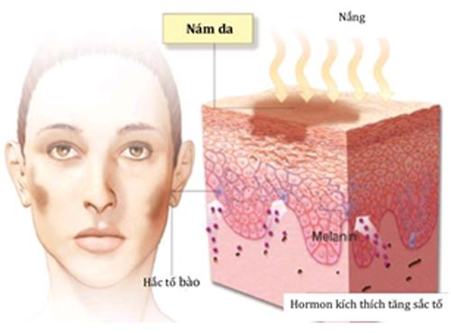 Chuyên gia chia sẻ cách trị nám da mặt 2