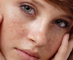 Nám da là gì? Cách nhận biết và điều trị – Chuyên gia da liễu tư vấn