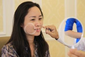 Chia sẻ trải nghiệm điều trị nám của khách hàng Lan Chi