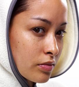 Làm thế nào để điều trị nám an toàn cho da nhạy cảm?