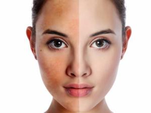 Làm sao để trị nám da và ngăn ngừa nám má lan rộng?
