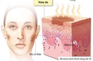 Bác sĩ tư vấn về nám da và cách trị nám sau sinh hiệu quả