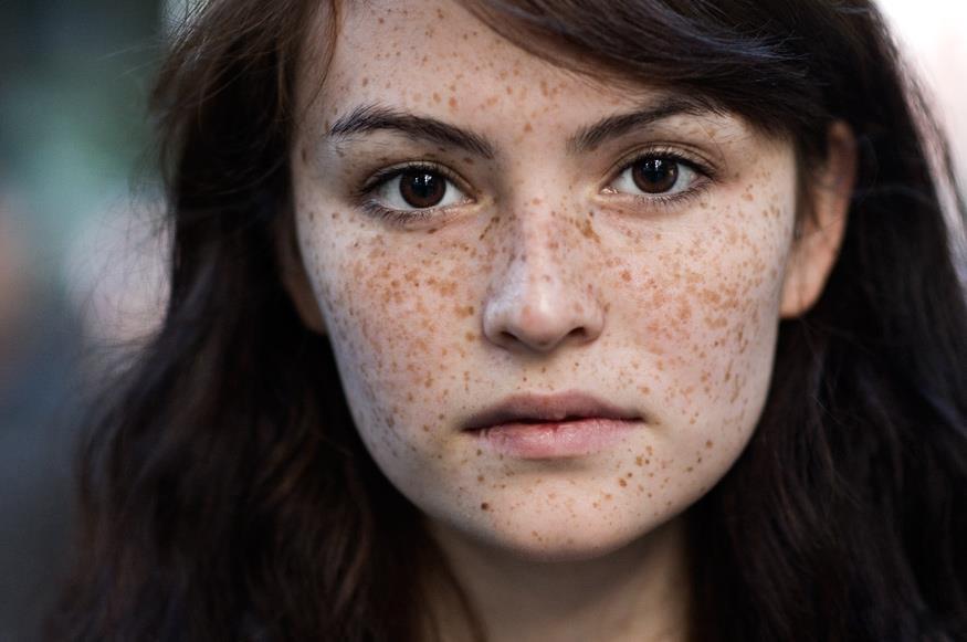 Cách trị nám da mặt hiệu quả đến 100% cho từng vị trí cụ thể