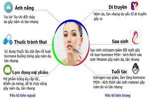 Nguyên nhân và cách trị bệnh nám da hiệu quả nhất
