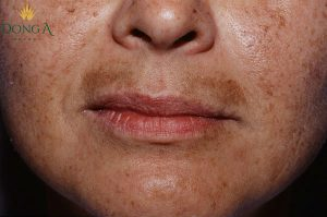 8 Lưu ý cần biết trong cách trị nám hàm râu hiệu quả