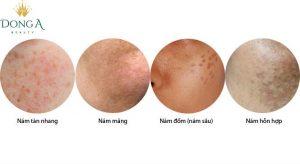 Cách nhận diện và phân biệt các loại nám – Cấp độ nám da