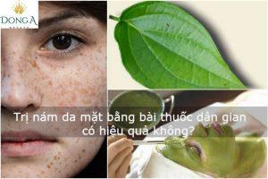 Trị nám da mặt bằng bài thuốc dân gian tại nhà có hiệu quả không?