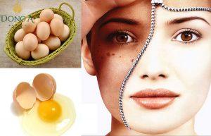 Cách trị nám bằng trứng gà có hiệu quả không?