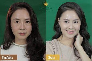 Trị nám da mặt bằng phương pháp dân gian an toàn và hiệu quả
