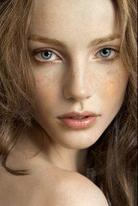 """Chăm sóc da mặt bị nám – Tưởng không dễ mà """"dễ không tưởng"""""""